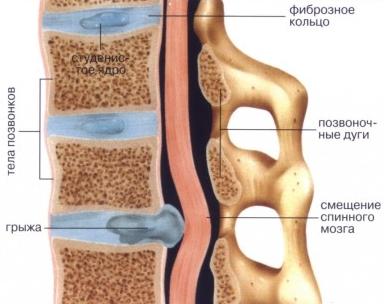 Мануальная терапия при грыже поясничного отдела позвоночника в Нижнем Новгороде